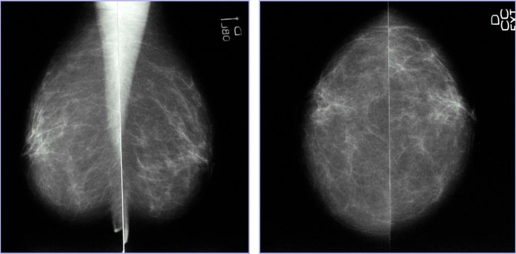Categoría BI-RADS® 1. Mamografía normal