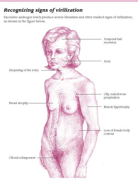 hirsutism-women-537