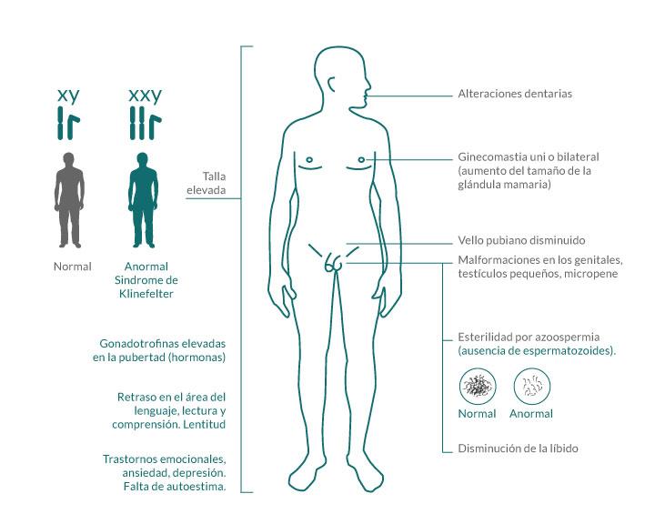 Síndrome-de-Klinefelter