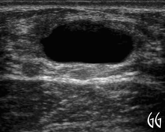 Ecotomografia mamaria